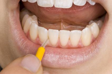 Mundhygiene mit Interdentalzahnbürste